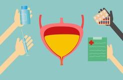 Traitement d'offre de médecins pour la vessie illustration stock