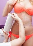 Traitement de cellulites Photographie stock libre de droits