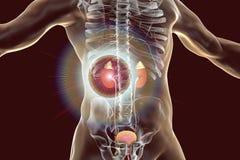 Traitement de pathologie de rein et concept de prévention illustration stock