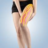Traitement de physiothérapie avec la bande thérapeutique pour la douleur dans la jambe photo libre de droits