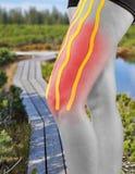 Traitement de physiothérapie avec la bande thérapeutique pour la douleur dans la jambe Photos libres de droits