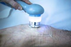 Traitement de physiothérapie de douleur de tension de blessure à la jambe de Muscleknee Image libre de droits