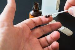 Traitement des doigts avec de l'iode photos libres de droits