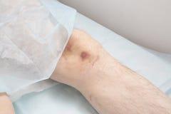 Traitement des personnes des sangsues médicales Photo stock