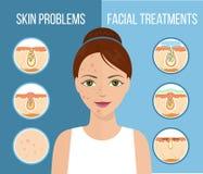 Traitement facial infographic illustration stock