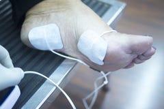 Traitement patient de physiothérapie de jambe de cheville de pied Image stock