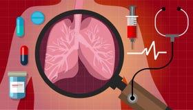 Traitement respiratoire de soins médicaux d'anatomie de médicament de santé de cancer de poumon illustration libre de droits