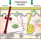 Transdermal drogleveranssystem royaltyfria foton