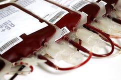 Transfusão do sangue Imagem de Stock