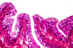 Transitional epithelium tissue. Of the urinary bladder under microscope, light micrograph, hematoxylin eosin staining stock images