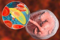 Transmission of Toxoplasma gondii parasites to fetus, medical concept. Transplacental transmission of Toxoplasma gondii parasites to human embryo, medical Stock Images
