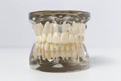 Transparent dentures model over white background. Close up of transparent dentures model displaying the anatomy of teeth over white background Stock Photo