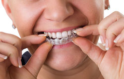 Transparent teeth braces royalty free stock images