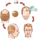 Transplantação do cabelo Imagens de Stock Royalty Free