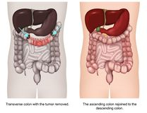Transverse colectomy 3d medical vector illustration vector illustration