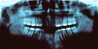 Trasparenza dentale panoramica di radiologia immagine stock