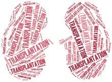 Trasplante de riñón Ejemplo de la nube de la palabra Foto de archivo libre de regalías
