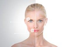 Tratamento antes e depois na beleza nórdica Fotos de Stock Royalty Free