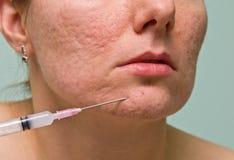 Tratamento da acne fotografia de stock