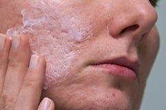 Tratamento da acne imagens de stock