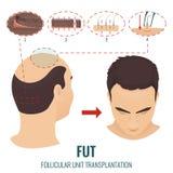 Tratamento da queda de cabelo de FUT ilustração royalty free