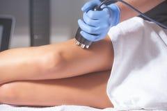 Tratamento das anti-celulites da mulher imagem de stock
