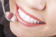 Tratamento dental com o espelho de boca de Dur fêmea caucasiano novo fotos de stock royalty free