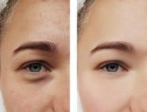 Tratamento do olho da menina, antes e depois dos procedimentos, acne foto de stock royalty free