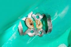 Tratamento endodontic da foto de canais dentais no molar mais baixo p imagem de stock royalty free