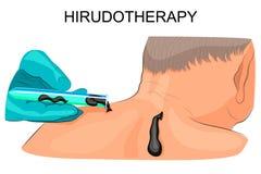 Tratamiento con las sanguijuelas Hirudotherapy ilustración del vector