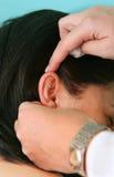 Tratamiento de la acupuntura foto de archivo libre de regalías