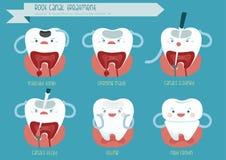 Tratamiento de la endodoncia Imagenes de archivo