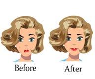 Tratamiento del acné antes después Foto de archivo