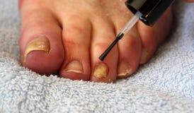 Tratamiento del hongo de la uña del pie Fotos de archivo libres de regalías