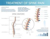 Tratamiento del vector del dolor de la espina dorsal Anatomía de la espina dorsal stock de ilustración