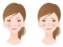 Tratamiento desatascado del poro en cara femenina Imágenes de archivo libres de regalías