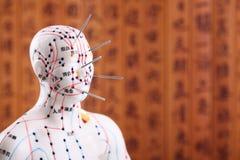 Tratamiento médico de la acupuntura. Fotografía de archivo libre de regalías