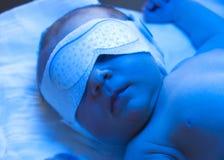 Tratamiento recién nacido de la ictericia Fotos de archivo libres de regalías
