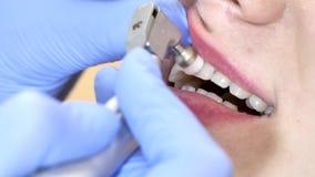 Tratando os dentes ao paciente da mulher Os dentes da limpeza do stomatologist do doutor fecham-se acima video estoque