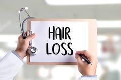 trattamento calvo della medicina del haircare di perdita dell'aria di alopecia, perdita di capelli Fotografia Stock