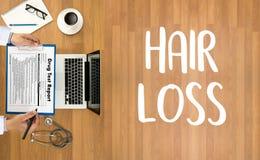 trattamento calvo della medicina del haircare di perdita dell'aria di alopecia, perdita di capelli Immagini Stock