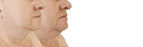 Trattamento cascante di sollevamento del doppio mento maschio che stringe il collage di obesità prima e dopo il trattamento estet immagini stock