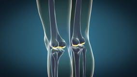 Trattamento 3D di osteoartrite illustrazione vettoriale