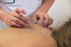 Trattamento da agopuntura immagini stock libere da diritti