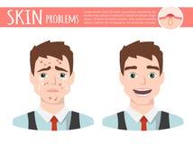 Trattamento dell'acne prima dopo, schiuma di pulizia facciale, illustrazione del fumetto Immagine Stock