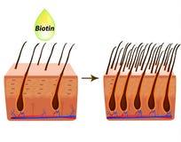 trattamento dell'alopecia Capelli delle vitamine biotina Pelle e capelli di Seborrhea Forfora, dermatite seborrheic Calvizile, ca royalty illustrazione gratis
