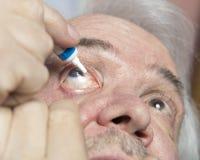 Trattamento della malattia dell'occhio Fotografia Stock