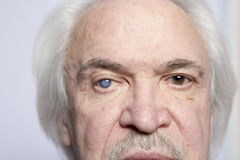 Trattamento della malattia dell'occhio Fotografie Stock