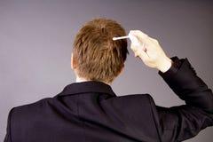 Trattamento della perdita di capelli Fotografie Stock Libere da Diritti