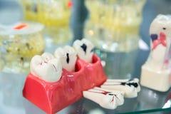 Trattamento della protesi dentaria, odontoiatria prostetica, medicina fotografie stock libere da diritti